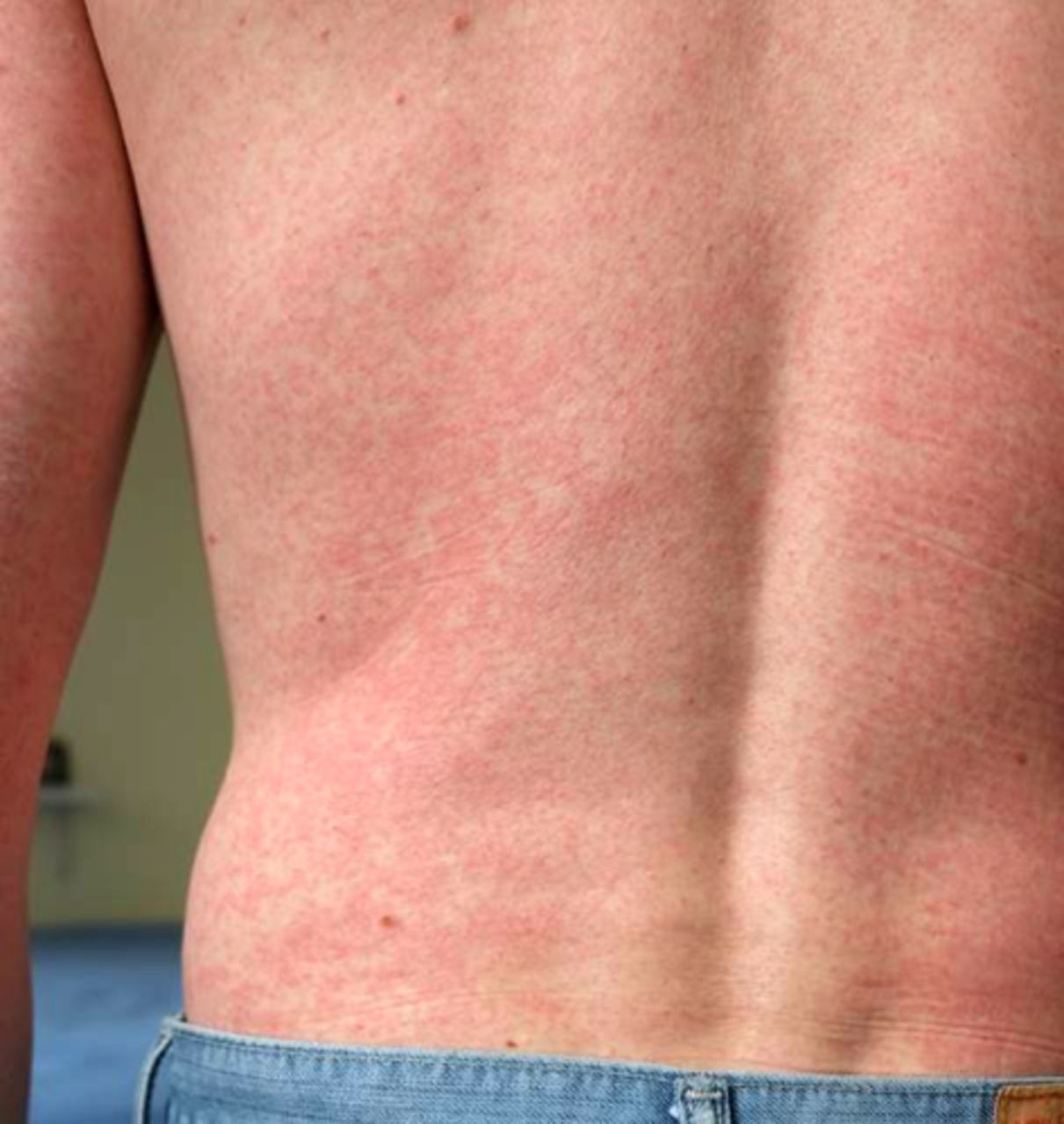 Online Dermatology - Zika Virus (Rash) - First Derm
